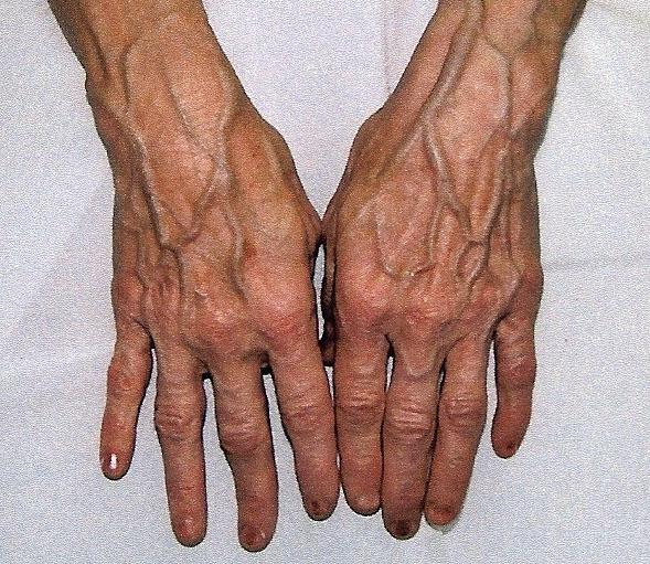 Вены на ногах выступают лечение у женщин