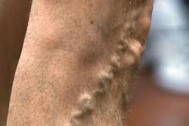 Боль по ходу вены на ногах