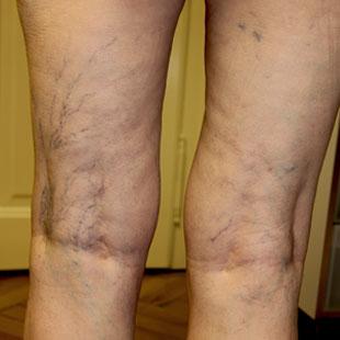 Болят вены на ногах причины
